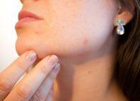 femeie care sufera de acnee